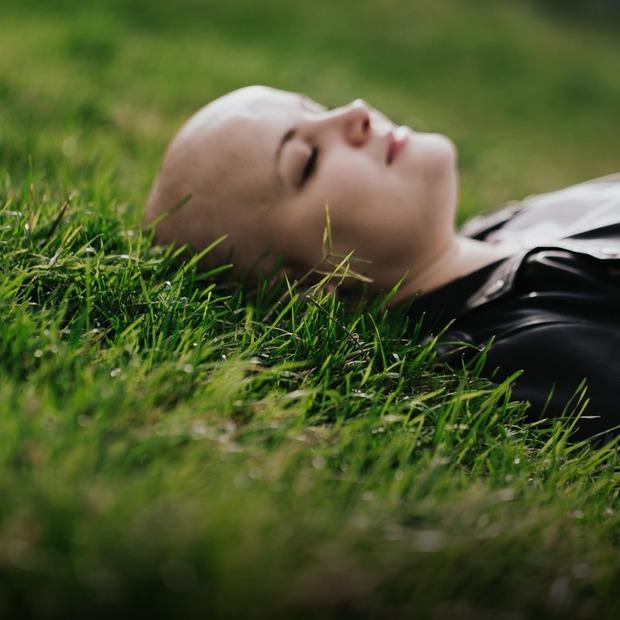 Я втратила майже все волосся: як це – жити з алопецією — Власний досвід на The Village Україна